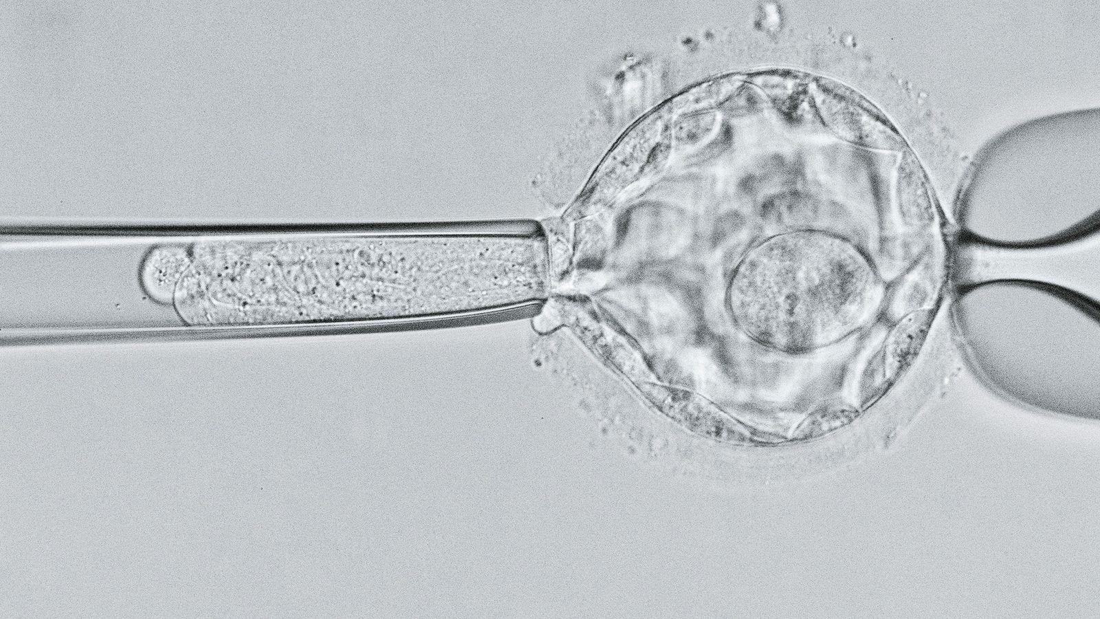 Los científicos examinan un embrión de blastocisto de cinco días para detectar el gen de la ...