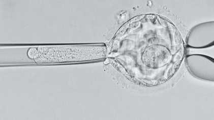 Los primeros bebés modificados genéticamente pueden sufrir una muerte temprana