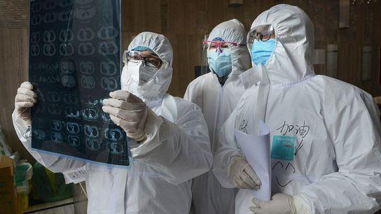 Los médicos observan una imagen de CT de pulmón en un hospital en el condado de ...