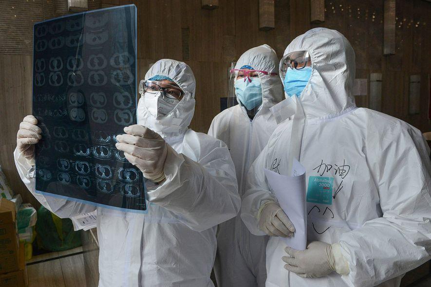 Estas condiciones subyacentes hacen que el coronavirus sea más severo