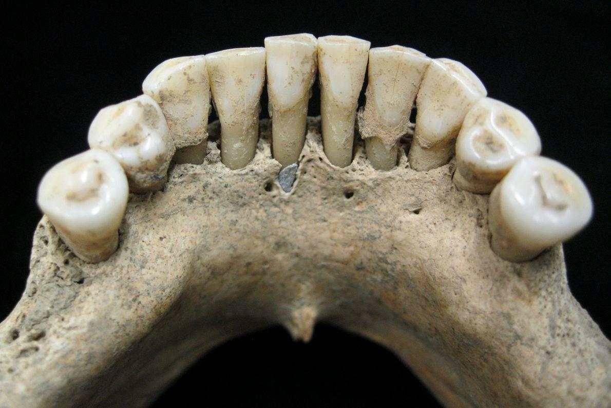 Partículas de lapislázuli, una piedra preciosa azul, atrapadas en la placa dental de una mujer de ...