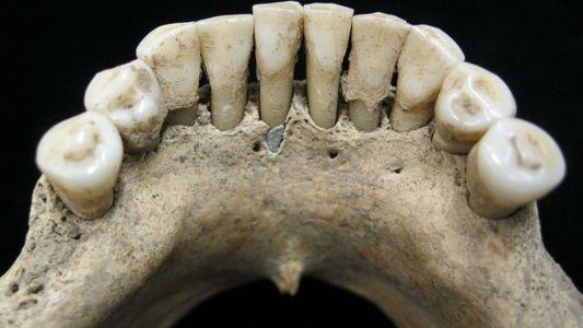 Descubren a una artista medieval a partir de su dentadura