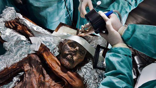 Los científicos estudian los restos de Ötzi, el Hombre de Hielo, de 5.300 años de edad ...