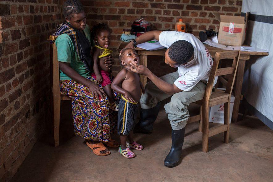 Examinan a Inesse Yaluba, de cuatro años, en busca de síntomas del sarampión en Monga, una ...