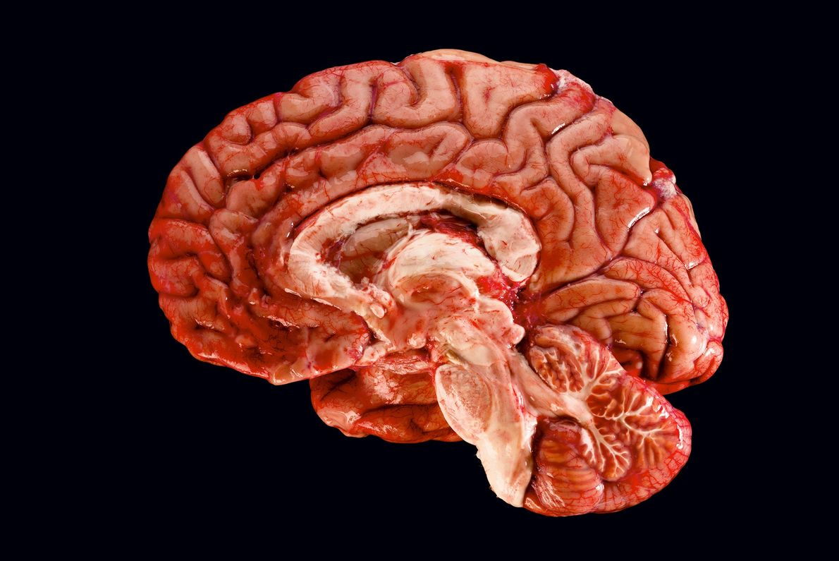 Esta sección transversal de un cerebro humano revela todas las áreas que necesitan cooperar para formar ...