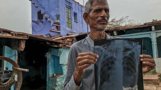 Ramsahai Meena (52), un minero del norte de India que sufre de silicosis, muestra su radiografía ...