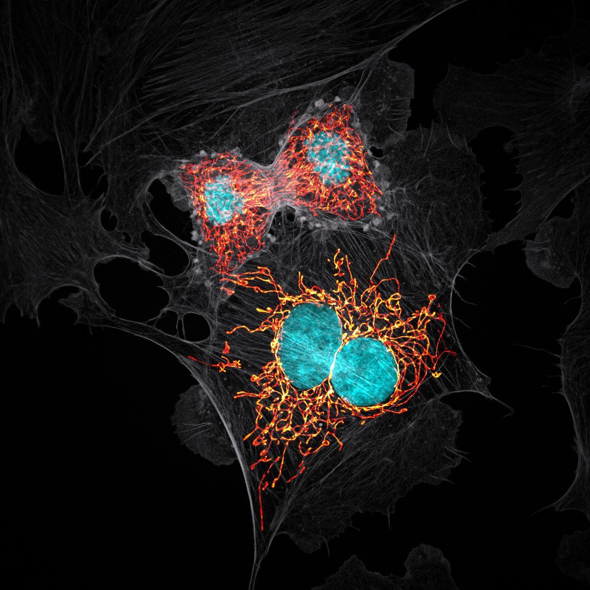 En 1979, un grupo de investigadores trabajó con células extraídas de la arteria pulmonar de una ...