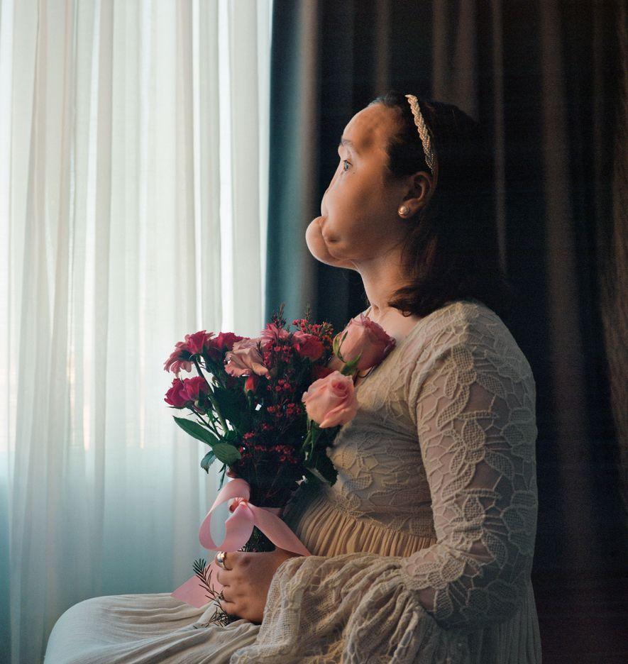 Antes de que Katie Stubblefield se sometiera a un trasplante de cara, posó para este retrato, ...