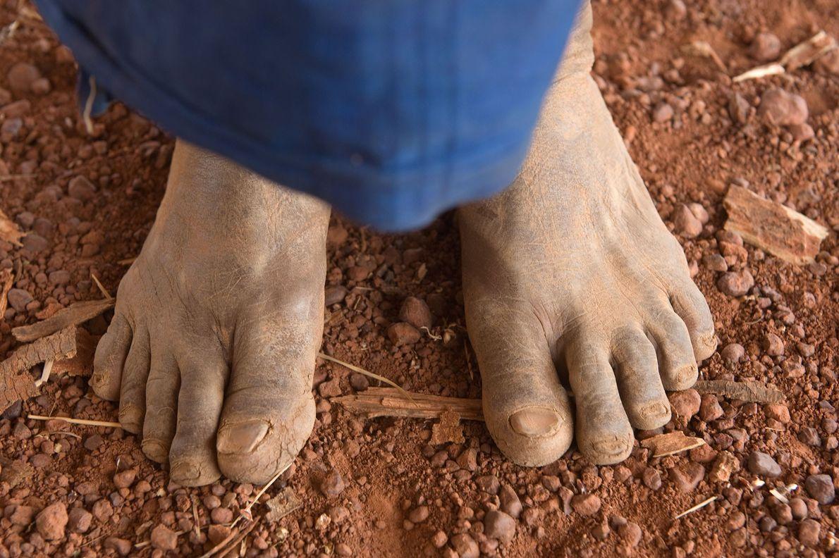 Una persona se encuentra en los terrenos de la granja de Yacouba Sawadogo cerca de la ...