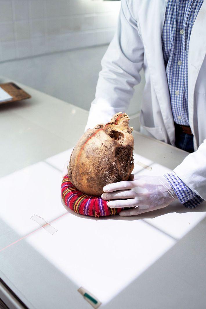 Un cráneo es preparado para rayos X, lo que ayudará a los investigadores a buscar fragmentos ...
