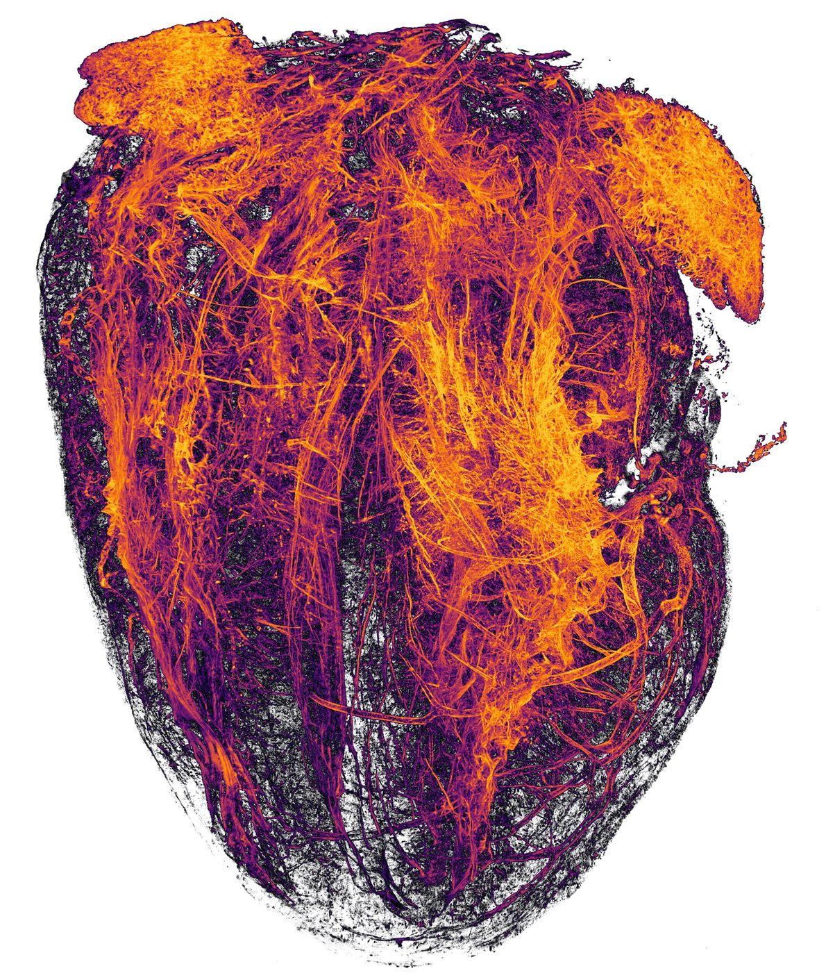 Estos zarcillos naranja fuego, fotografiados por investigadores de University Hospital Essen, son vasos sanguíneos del corazón ...