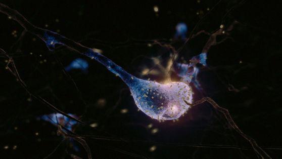 Virus, un depredador microscópico   Cosmos: Mundos Posibles