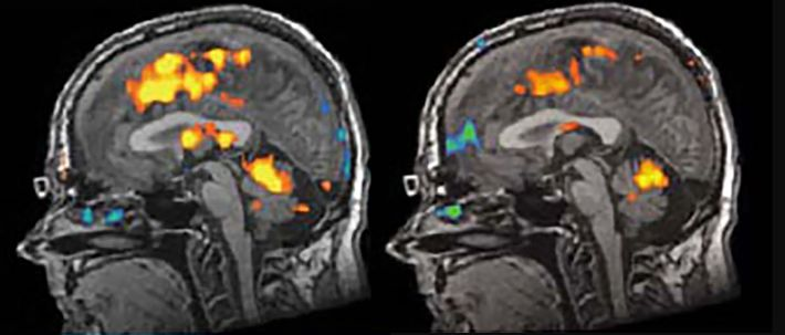 Los escaneos cerebrales de una persona no identificada en el estudio de Hoffman muestran que las ...