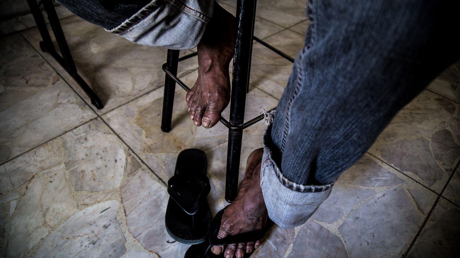 """""""Los pies de un menor de 15 años luego de caminar tres días sin parar. Su ..."""