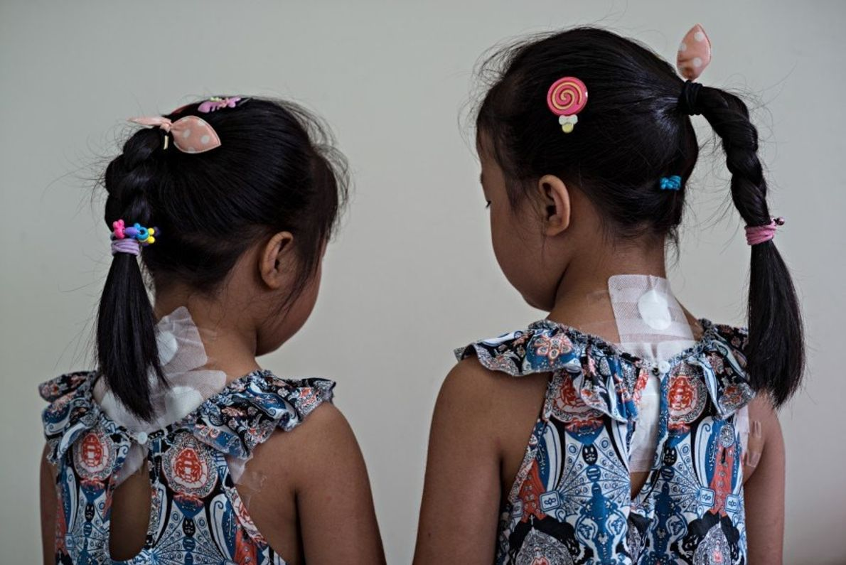 En el Hospital de Medicina Tradicional China de la Universidad de Chengú, las hermanas gemelas Zheng ...