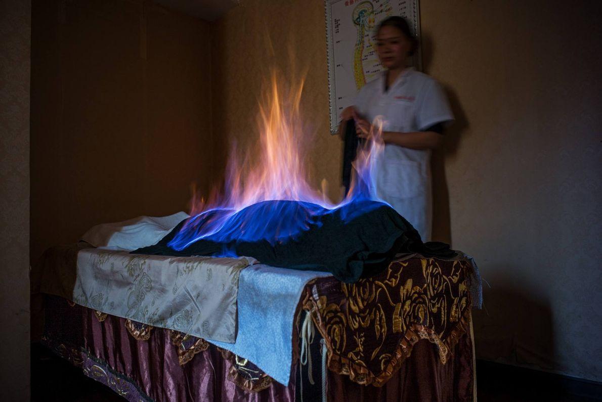 En una sesión de tratamiento con fuego en Chengdú, China, se envuelve al paciente en un ...