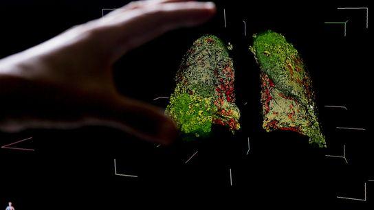 Esta imagen 3d obtenida por medio de datos de tomografía muestra los síntomas de la COVID-19 ...