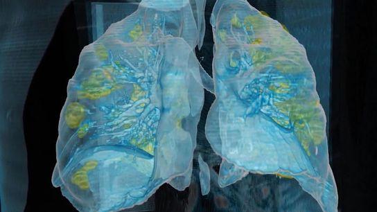 En este modelo 3D basado en una tomografía computarizada vemos que el coronavirus ha causado daños ...