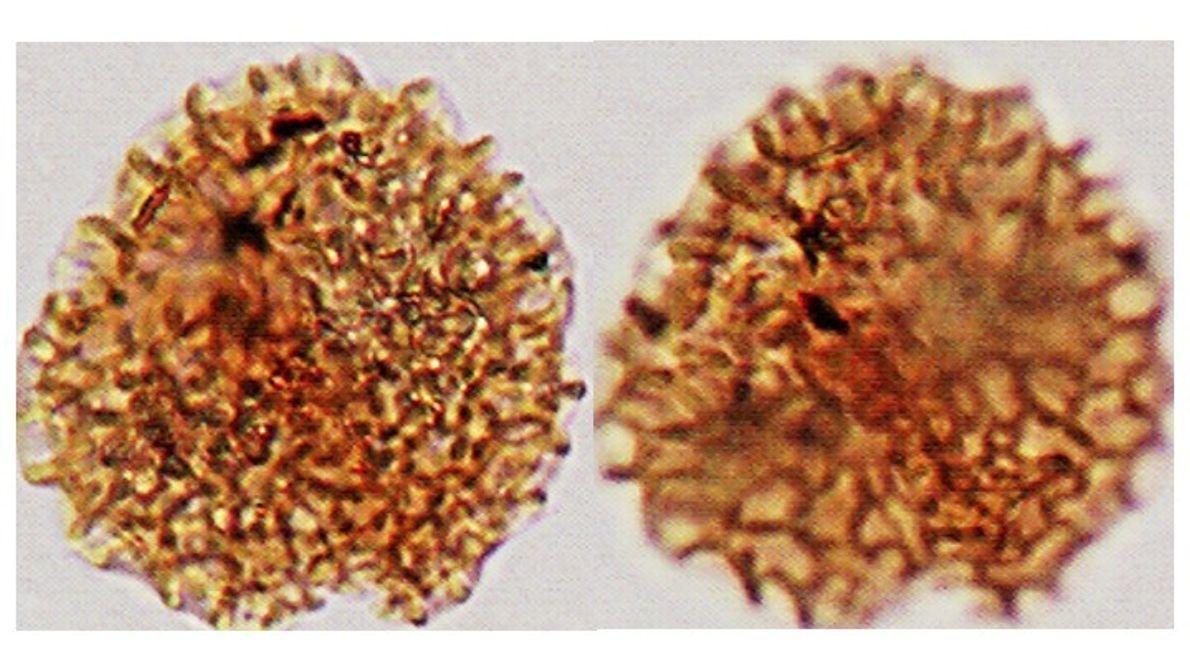 Micrografía de grano de polen del Mioceno tardío con afinidad a la familia Fabaceae (leguminosas).