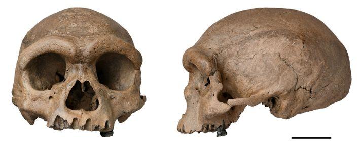 Harbin cranium