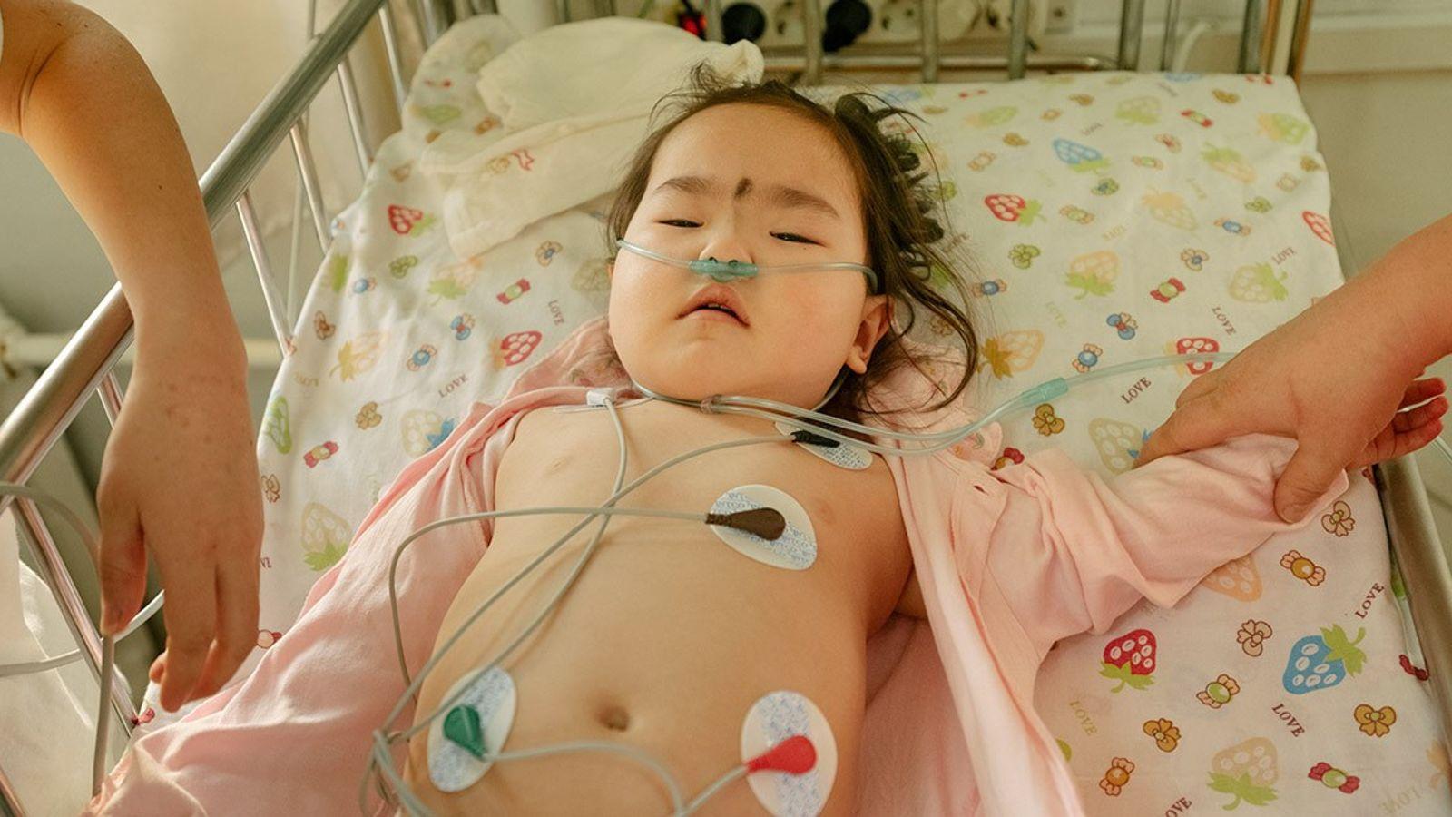 Una niña de dos años recibe tratamiento para la neumonía en la unidad de cuidados intensivos ...