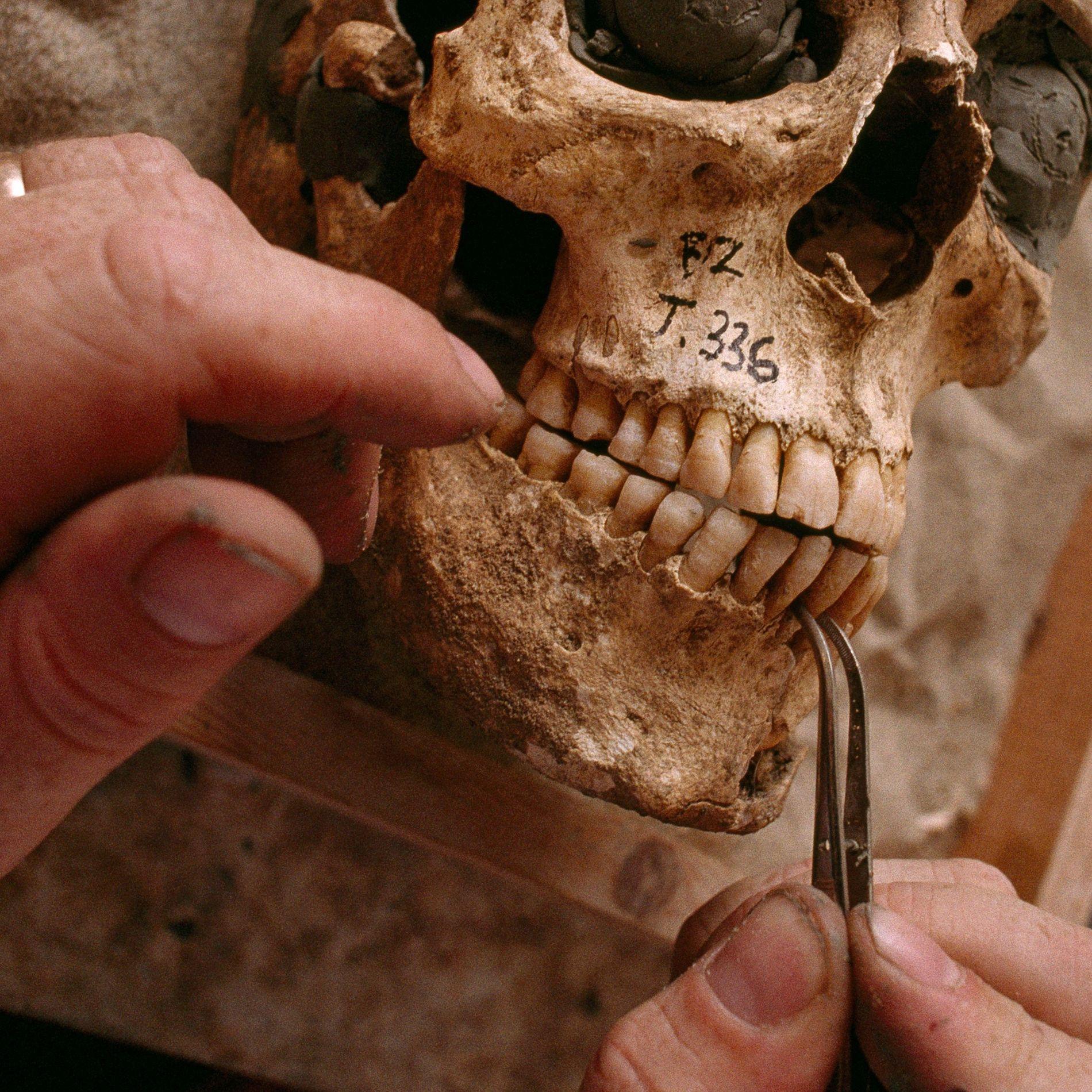 Losdientes deesta calavera de la antigua Grecia indican que la persona tuve graves episodios de fiebrecuando ...