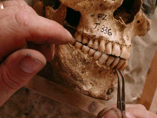 Tus huesos pueden revelar dónde creciste y cuál fue tu alimentación