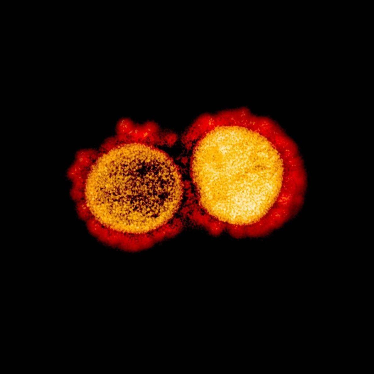 Micrografía electrónica de transmisión de las partículas del virus SARS-CoV-2 aislado de un paciente. Imagen capturada ...