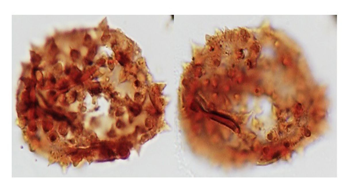 Micrografía de grano de polen del Mioceno tardío con afinidad a la familia Malvaceae.