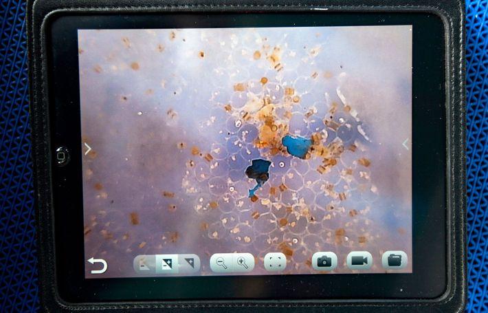 Dos fragmentos de microplástico azul, probablemente procedentes de equipo de pesca desechado, rodeados de diatomeas en ...