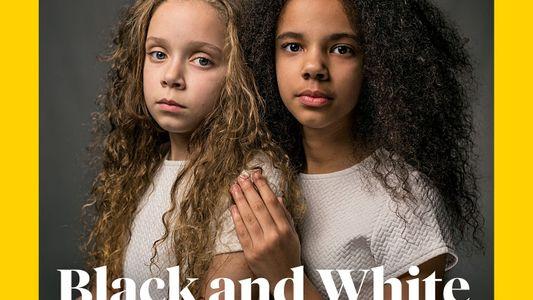 Estas gemelas te harán replantearte el concepto de raza