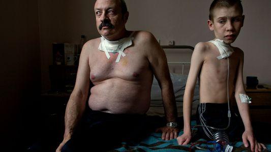 Chernóbil: los hijos de sobrevivientes no presentan transmisión de un exceso de mutaciones genéticas