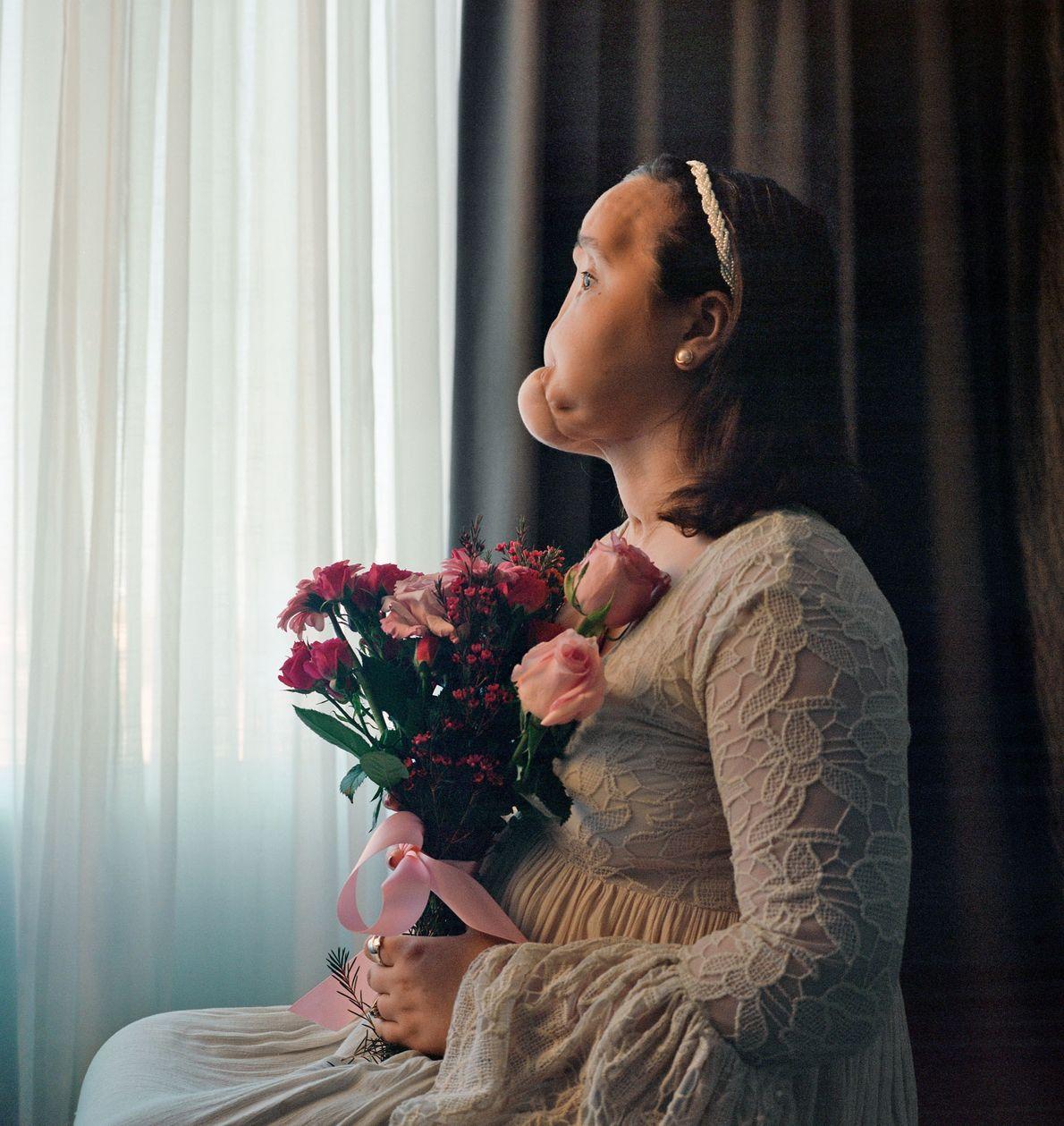 Katie Stubblefield posó para este retrato antes de recibir un  trasplante de rostro. Su cara ...