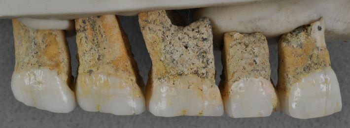 """Cinco de los siete dientes atribuidos al """"Homo luzonensis"""". Los dientes son de pequeño tamaño y ..."""