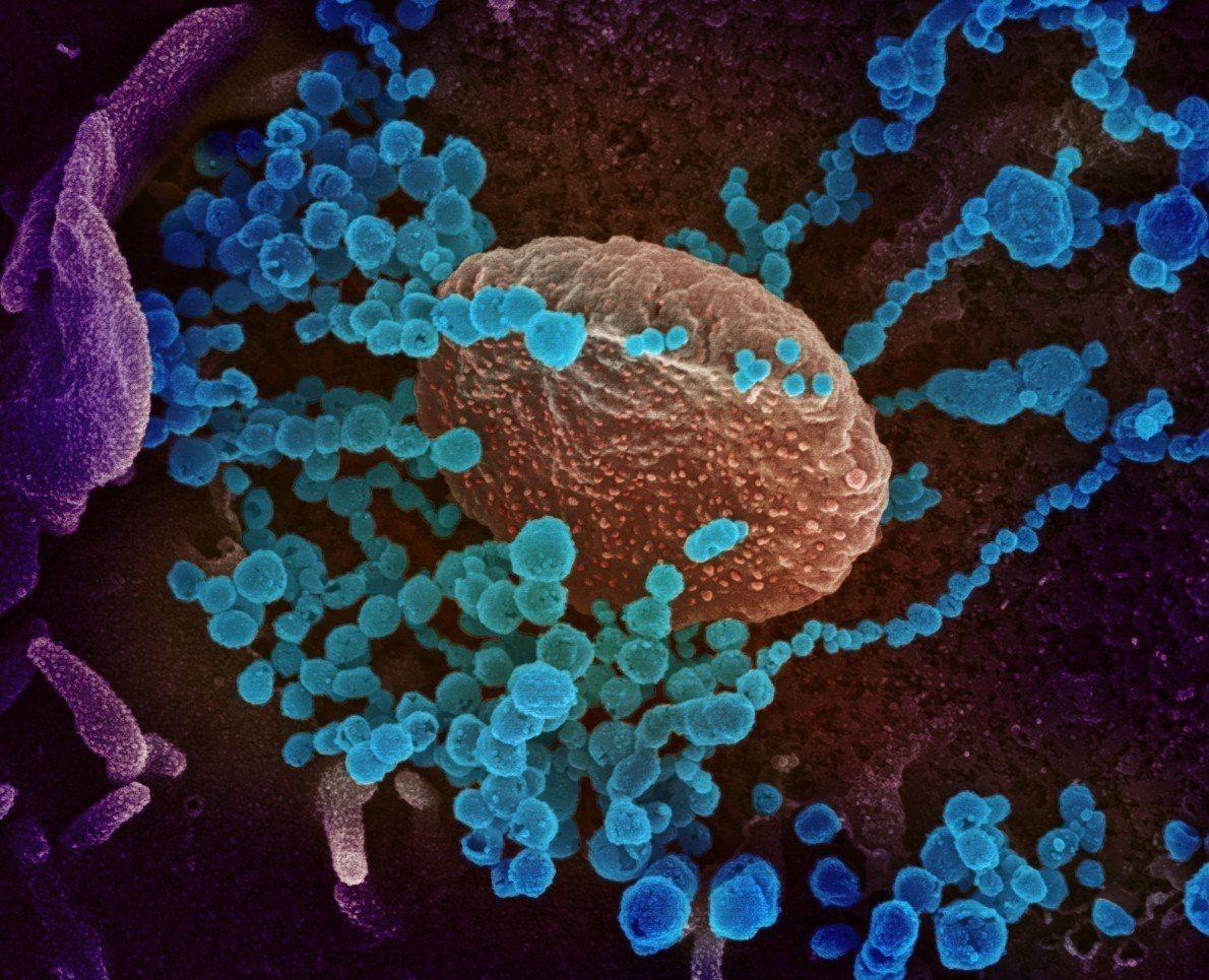 Esta imagen de un microscopio electrónico de barrido muestra al SARS-CoV-2 (los objetos azules redondos) emergiendo ...