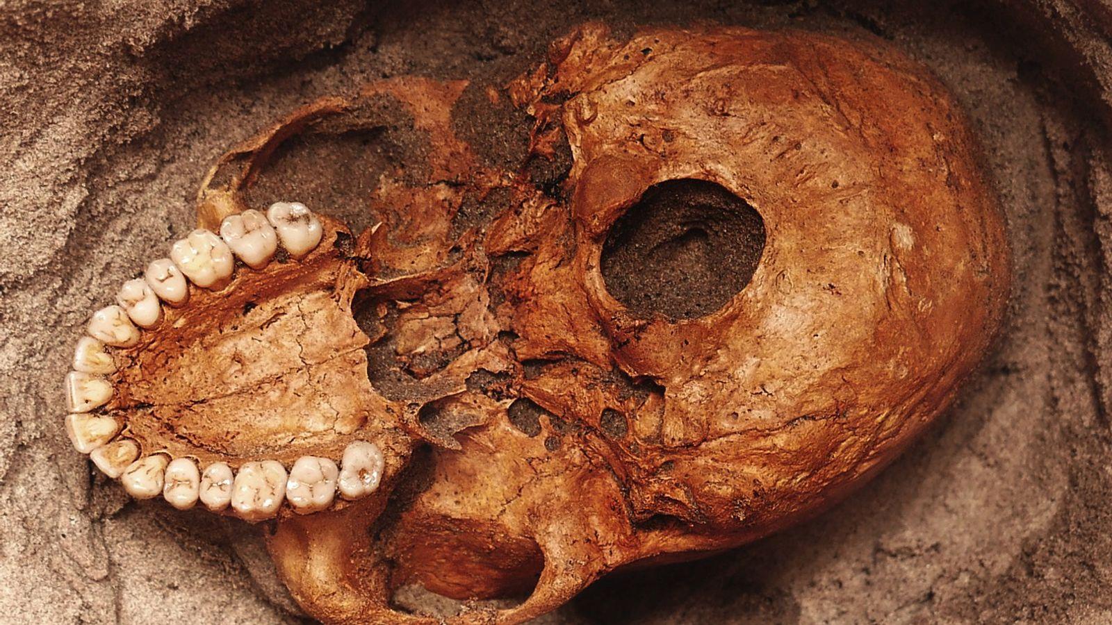 Un cráneo humano se asoma desde la arena gris a lo largo del río Pangani de ...