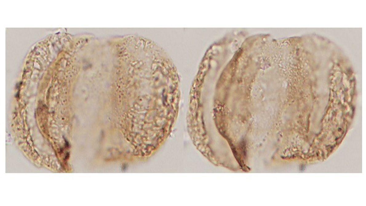 Micrografía de grano de polen del Mioceno tardío con afinidad a la familia de coníferas Podocarpaceae. ...