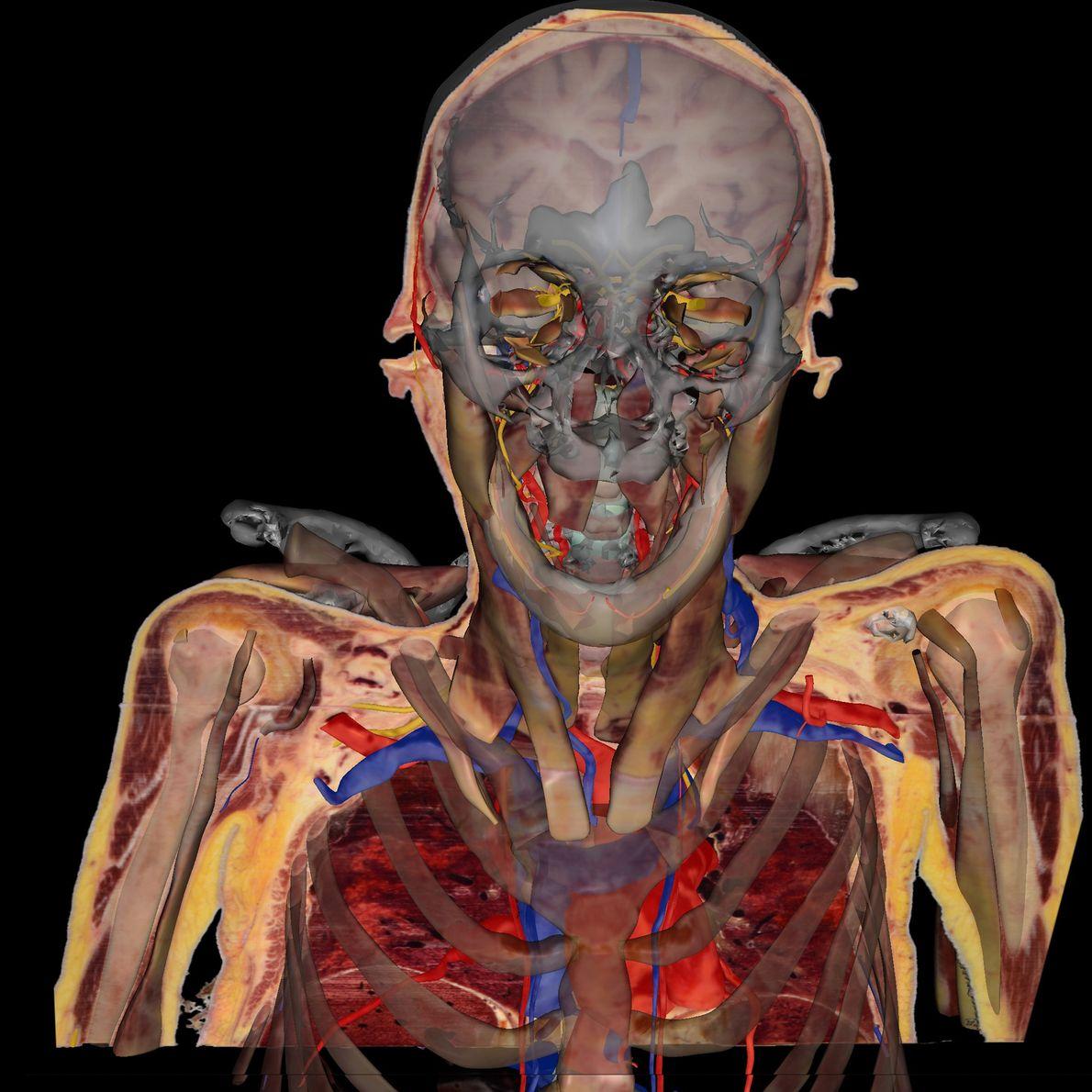 Aquí, se ha quitado la piel de Potter para mostrar su anatomía en 3D, con el ...