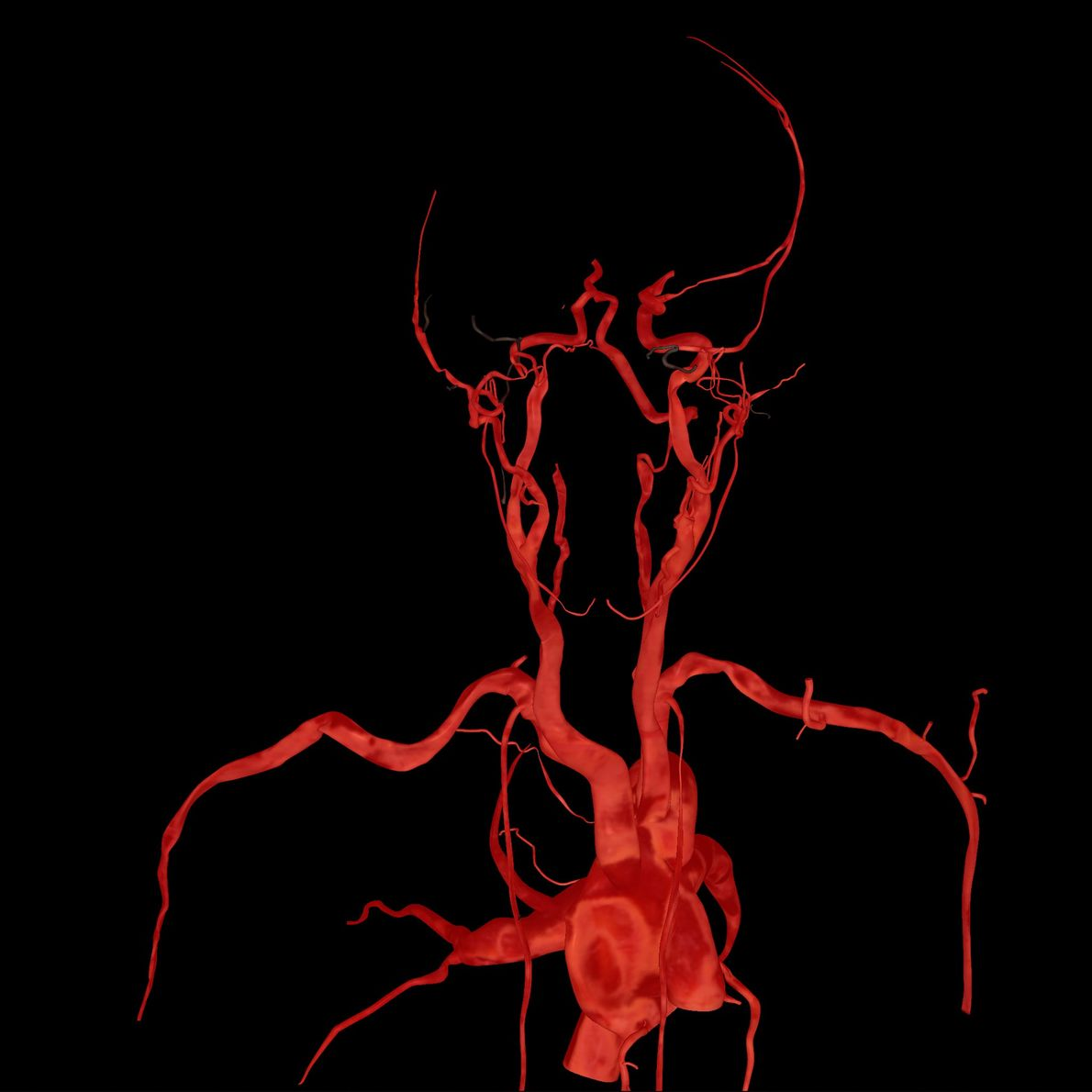 Aquí, solo se ven su corazón y las arterias.